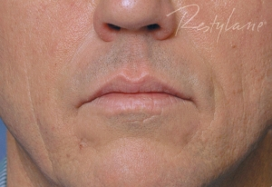 After 2mL of RESTYLANE
